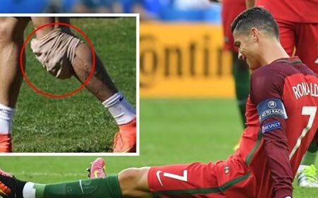 A condição com que Cristiano Ronaldo foi diagnosticado em 2014, que não tem cura e piora ao longo do tempo